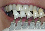 Teeth Whitening Color Match