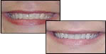 Immediate Teeth Whitening Results with Oxford OH Dentist Dr. Dolgov