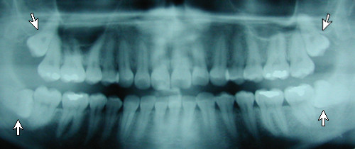 Panoramic x-ray of impacted teeth