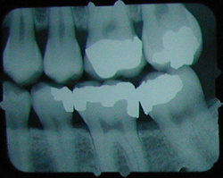 x-ray (previous)